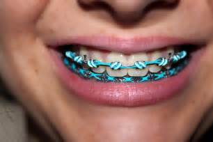 cool braces colors braces 10 teal light blue flickr photo