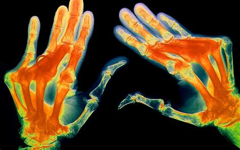 Orencia Also Search For Abatacept Now Approved For Rheumatoid Arthritis After Failure Of Conventional Dmards