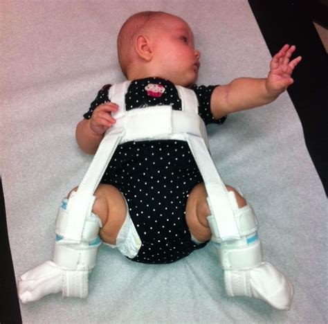 hip dysplasia ucf college of medicine harness treats infant hip dysplasia