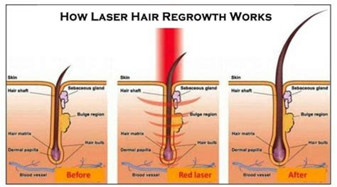 red light laser hair growth hair designers of houston laser hair therapy hair