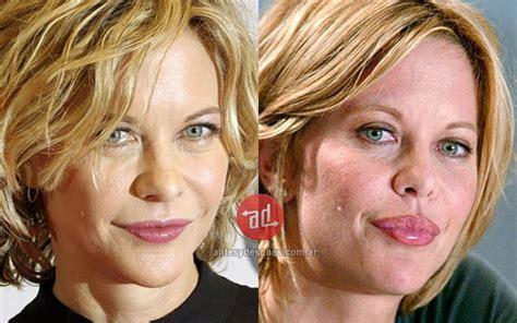 consecuencias exceso botox lo mejor 187 famosas que usan botox antes y despues biografia