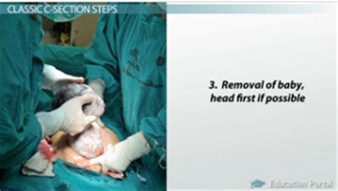 C Section Photos Step By Step by C Section Procedure Step By Step Pictures To Pin On
