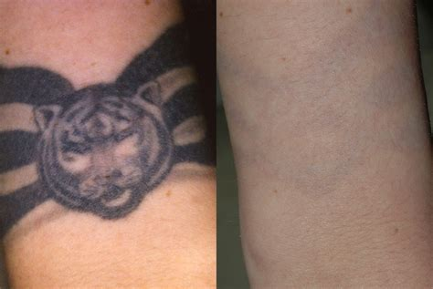 yag laser tattoo removal before and after images
