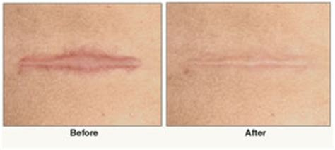 c section scar removal before and after uncategorized silicone for scars