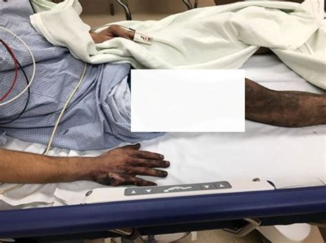 Rokok Vitalitas Yungfa U Pria rokok elektrik meledak paha pria ini hangus terbakar okezone news