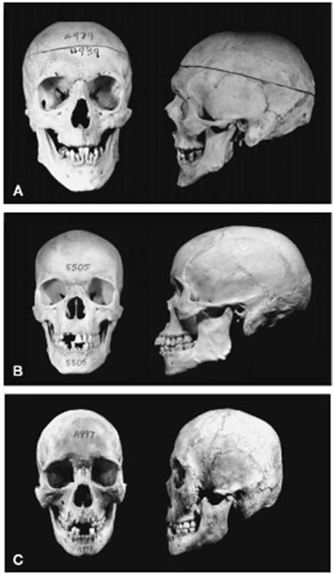 what is the difference between afro and milo kinky ancient slavic skull with sagittal keel slavic