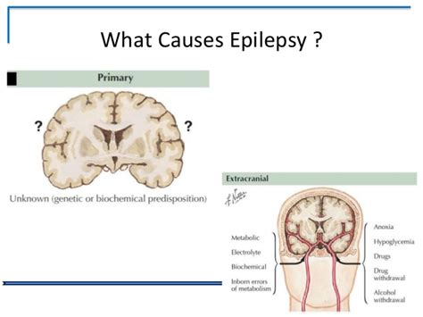 what causes seizures epilepsy a modern day perspective