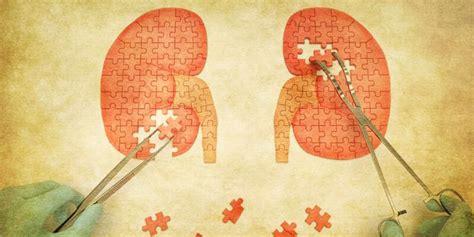 alimenti per calcoli renali dieta per calcoli renali e calcoli delle vie urinarie