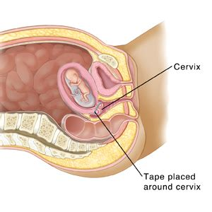 ual intercourse cross section anatomy premature birth