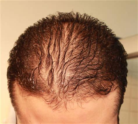 Diffuse Hair Loss Male Pattern Baldness | diffuse pattern hair loss versus unpatterned hair loss