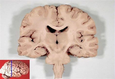 coronal section of human brain file human brain frontal coronal section jpg wikimedia