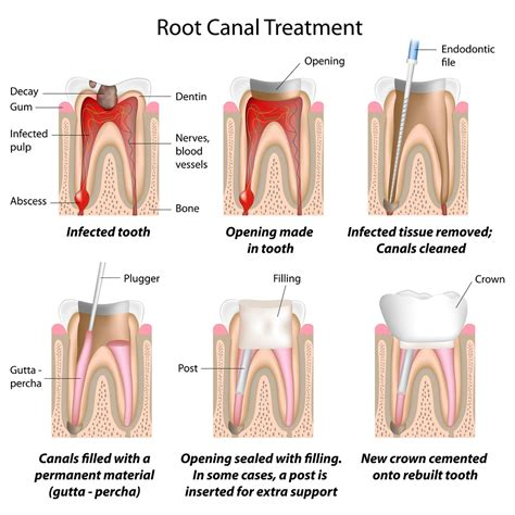 Square Root Of 289 by How Root Canal Therapy Is Done Mississauga Dentist City