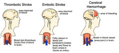 nursing care plan cerebrovascular accident (cva