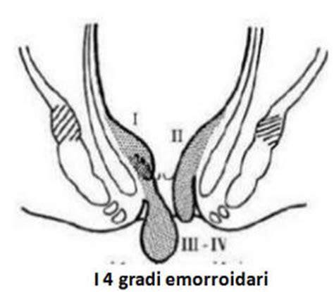 gavocciolo emorroidario interno classificazione prolasso delle emorroidi in gradi