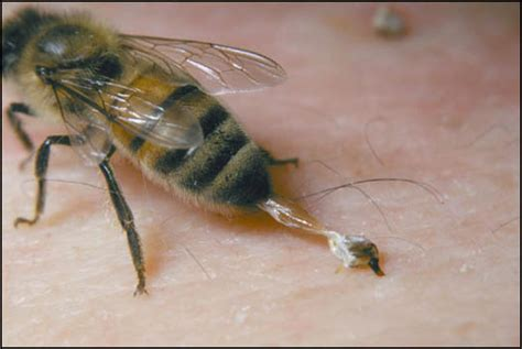 bee sting on a bee sting causes symptoms treatment bee sting