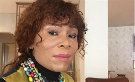 Leleti Skin | leleti khumalo opens up about life with vitiligo all 4 women