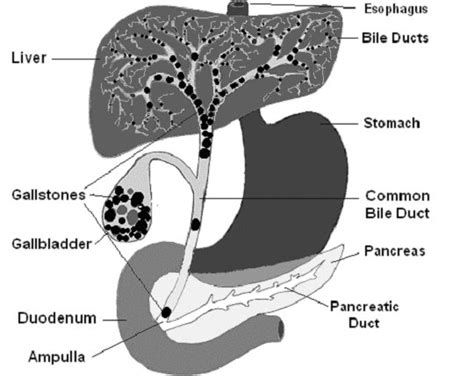 Pancreatitis And Detox Reddit by Disorders Of The Pancreas Ener Chi Wellness Center