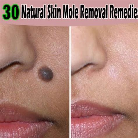 home remedies for skin mole removal tips park health