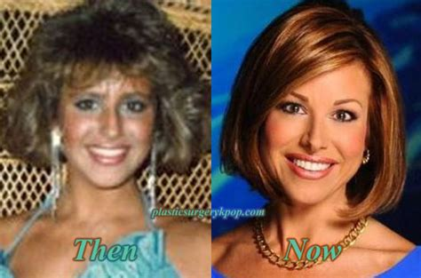 dominique sachse plastic surgery before and after photos dominique sachse plastic surgery before and after pictures