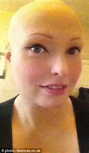 completely bald women brenda finn left completely bald by alopecia on bully hell