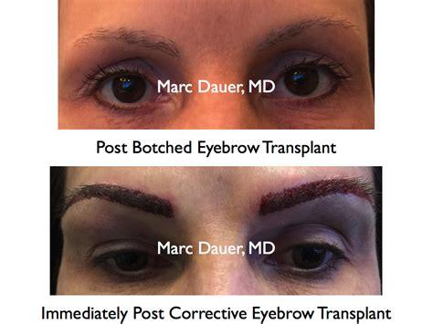 eyebrow transplant spiky hairs eyebrow transplant spiky hairs eyebrow hair transplant