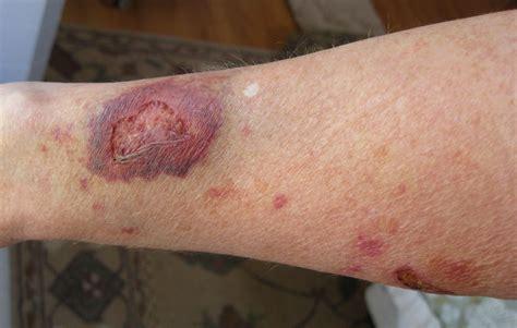 Salep Topikal salep alergi kulit kortikosteroid kenali jenis dan