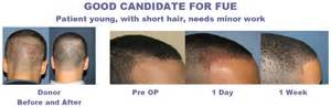 is hair transplant safe how to choose affordable hair transplant surgeryhair