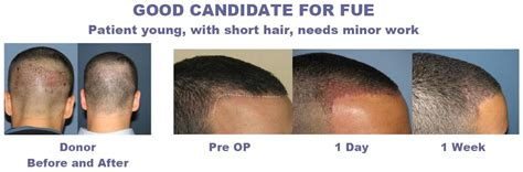 Hair Transplant Types The Best One by How To Choose Affordable Hair Transplant Surgeryhair