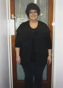weight loss surgery my gastric band nearly killed me weight loss surgery my gastric band nearly killed me