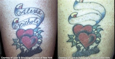 laser tattoo removal new york laser removal nyc laser skin surgery center of