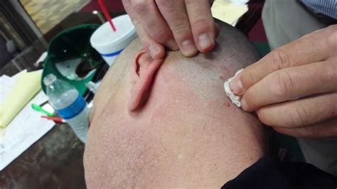 pictures of ingrown hair bumps on private area pictures of ingrown hair bumps on private area