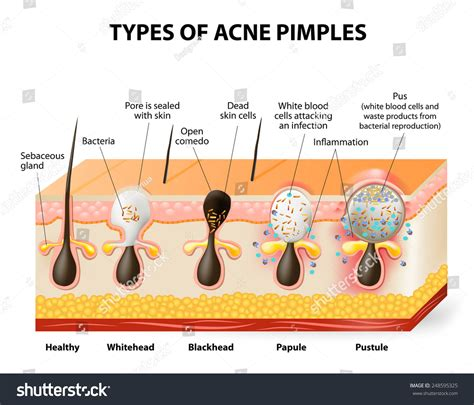 pustules pestilence and tudor treatments and ailments of henry viii books types acne pimples healthy skin whiteheads stock vector