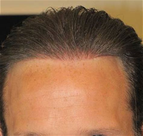 synthetic hair transplants nido artificial synthetic hair implant