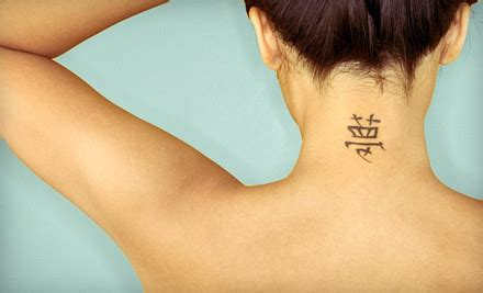 colorado tattoo removal removal cost colorado springs