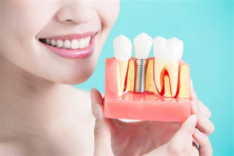 dental implants cost    implant