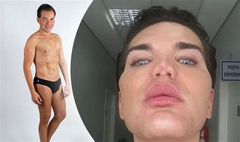 human ken doll before and plastic surgery addict may have 163 50 000 nose from nhs
