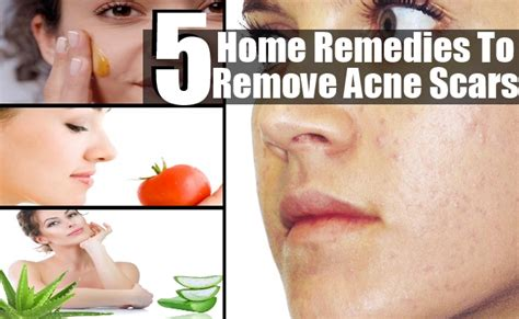 how to remove scars from acne home remedy