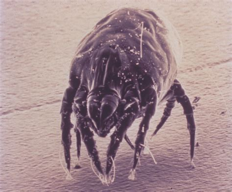 bed mites pictures dust mite photos aaaai