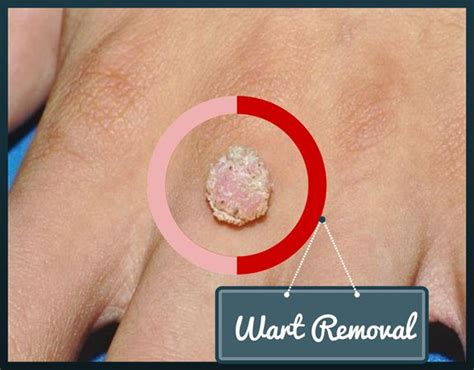top wart removal at home on 20 wart removal home remedies