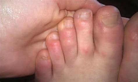 Wasserblasen An Den Fingern 5226 by Schmerzhafte Bl 228 Schen Und Druckstellen An Den Zehen Haut