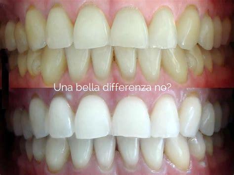 sbiancamento denti casa voglio denti bianchissimi dottor lucio merlini