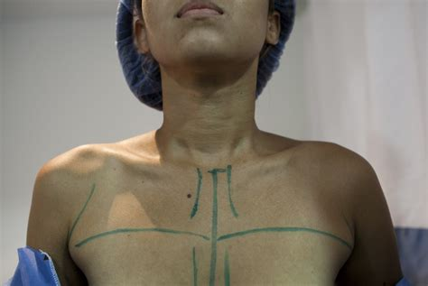 3d nipple areola tattooing the evolving techniques and technologies of breast