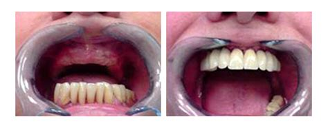 tipi di protesi dentarie mobili protesi dentali roma prezzi