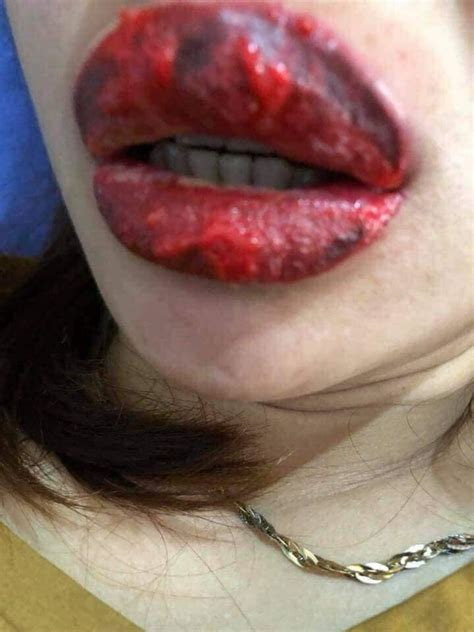 tattoo infection video fake woman s lips became severely infected and swollen after