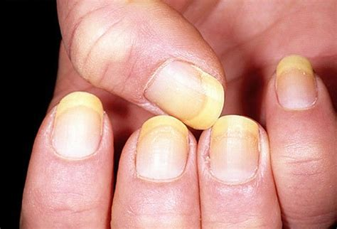 White Nail Beds by What Your Fingernails Say About Your Health Passnownow