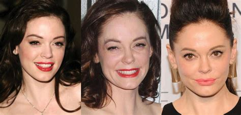 rose tarlow plastic surgery rose mcgowan plastic surgery before and after pictures 2018