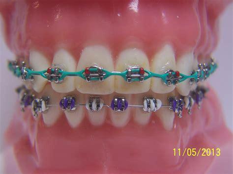 the gallery for gt braces colors combinations fashionable braces general dentist orthodontics braces