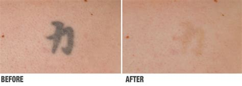 why does laser tattoo removal hurt laser removal and brown spot removal