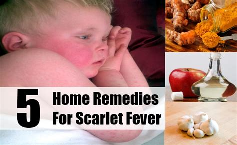 scarlet fever history of images