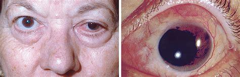 voriconazole treatment  fungal scleritis  epibulbar abscess resulting  scleral buckle